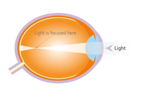 Myopia vizsgálata. Rövidlátás – Wikipédia